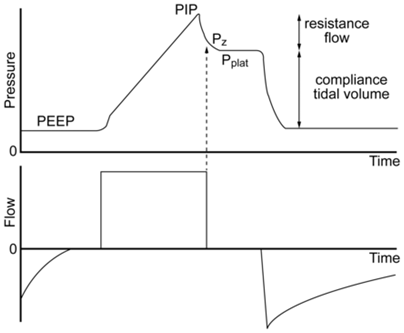 Airway pressure and flow waveforms during constant flow volume control ventilation show PEEP and PIP